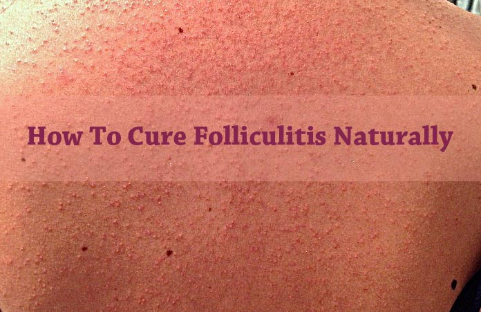 Natural Treatment For Folliculitis Decalvans